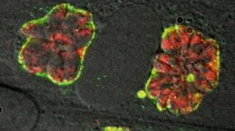 Immune Evasion: How Sneaky Pathogens Avoid Host Surveillance course image