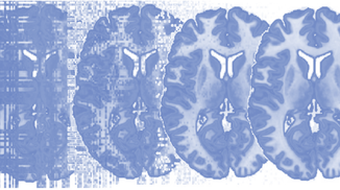Principles of fMRI 1 course image