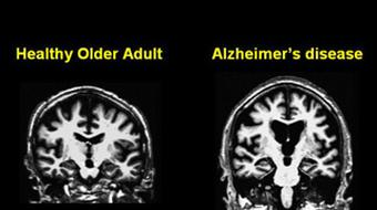 Neurology, Neuropsychology, and Neurobiology of Aging course image