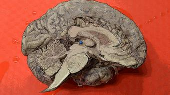 Understanding the Brain: The Neurobiology of Everyday Life course image