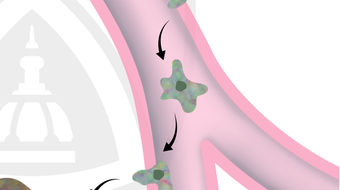 Understanding Cancer Metastasis course image