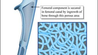 Biomaterials-Tissue Interactions course image