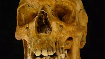 Osteoarchaeology: The Truth in Our Bones course image