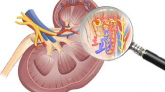 Fisiopatología renal y enigmas de la vida cotidiana course image