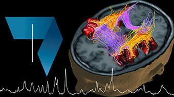 Fundamentals of Biomedical Imaging: Magnetic Resonance Imaging (MRI) course image