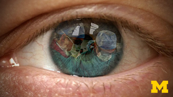 Introduction to Cataract Surgery course image