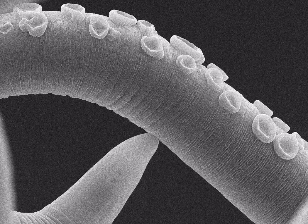 Parasitic Worms: Life Stories course image