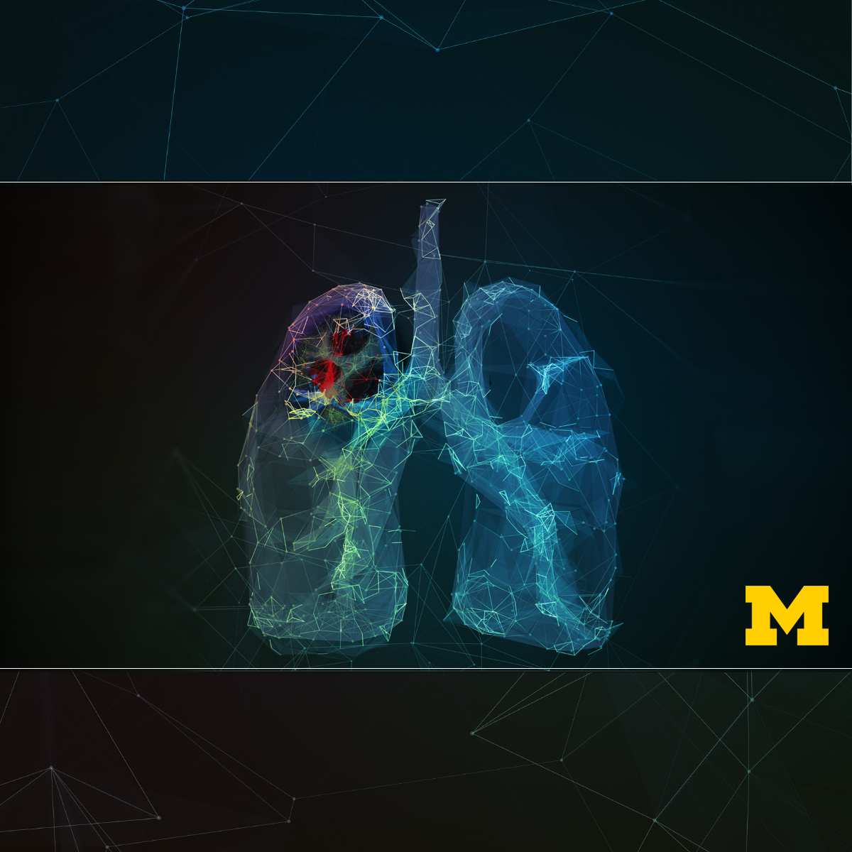 Thoracic Oncology course image