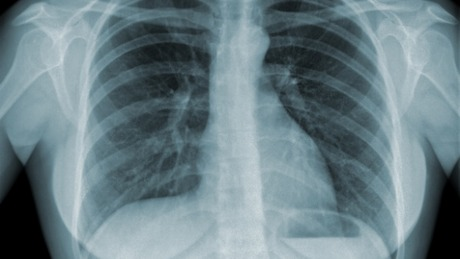 Global Tuberculosis (TB) Clinical Management and Research course image