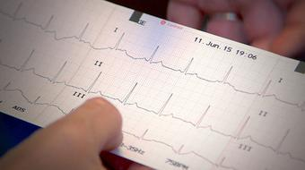 ECG Assessment: an Introduction for Healthcare Providers course image