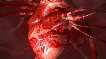 Heart Health: A Beginner's Guide to Cardiovascular Disease course image